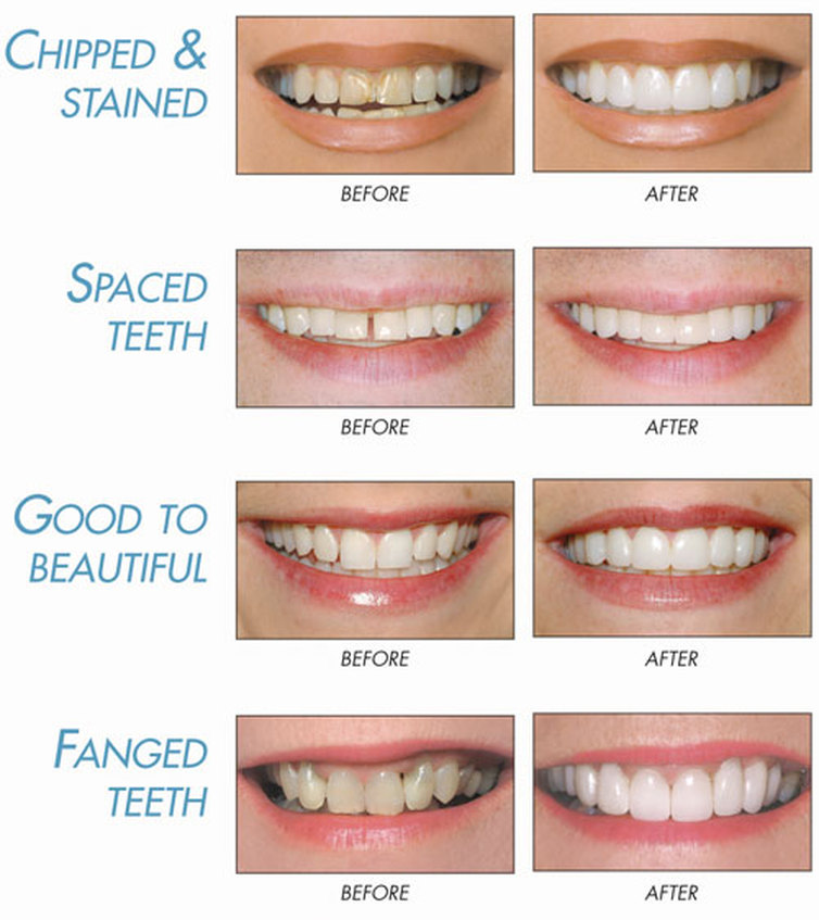 Maggie Kleem Dds Before And After Dental Cosmetic